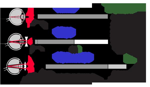 hyperopia dioptria